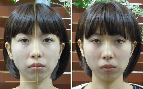 小顔初回時の変化