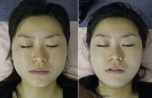 小顔矯正初回時の変化2